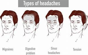 Illustration About Headaches 4 Type On Different Area Of