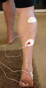 The Correct Tens Unit Placement For Plantar Fasciitis