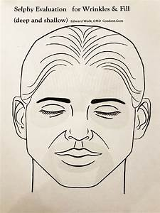 Botox Injection Sites Face Diagram  U2014 Untpikapps