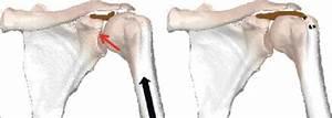 A  Humeral Head Upward Trend After Chronic Rotator Cuff Tear   B