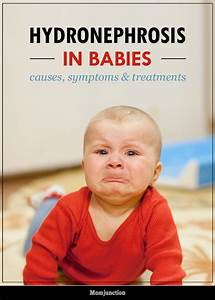 Height And Weight Chart For Babies Calculator Hydronephrosis In Babies Causes Symptoms Treatments