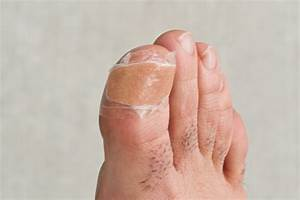 Infected Ingrown Toenail Remedy  With Pictures