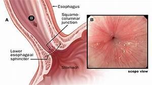 The Human Esophagus