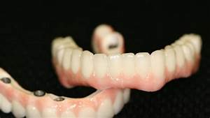 All-on-4 Dental Implants  The End Of Denture