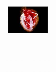 Slideshow  A Visual Guide To Heart Disease