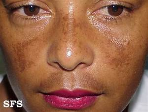 Melasma: Brown Patches on the Face - MDhairmixtress.com Male pattern baldness