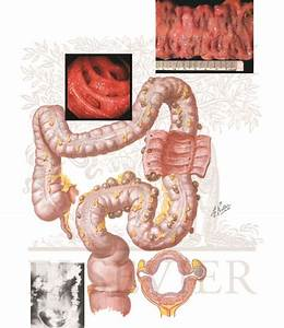 Diverticulosis Of Colon