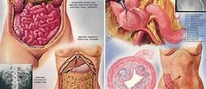 Appendix Symptoms Left Side Pain