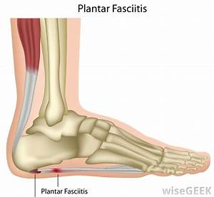 What Triggers Painful Heel To Flare Up