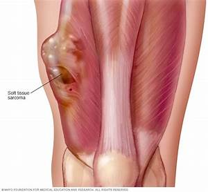 Soft Tissue Sarcoma Disease Reference Guide