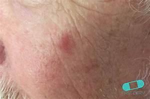 Online Dermatology