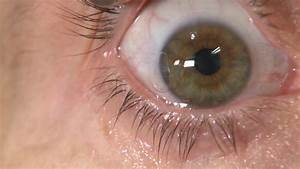 Fungal Keratitis  Contact Users Look Out