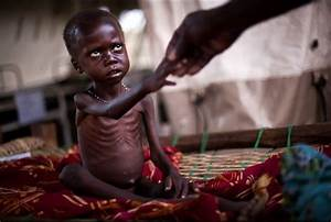 Hunger  Malnutrition Reach Record Levels In South Sudan  Un Official