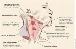 Swelling Of Lymph Nodes In Neck