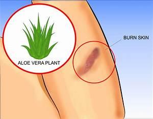 Use Aloe Vera To Treat Burns
