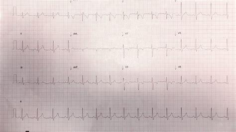 Ecg ndings in patients with acute viral myocarditis are highly variable. Myocarditis - Resus
