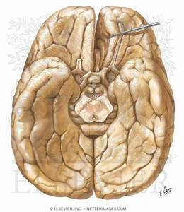 34 Label The View Of The Inferior Surface Of The Brain