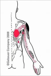 Suprascapular nerve entrapment. | Physical Therapy ...