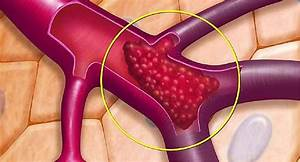Pin On Diverticulitis Treatment Natural