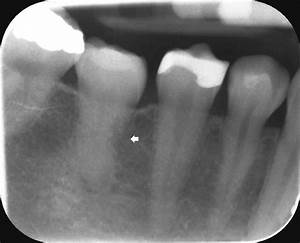 Apical Radiograph Of A Transplanted Molar Showing