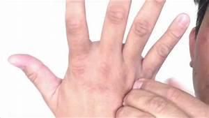 Wrist Pain Carpal Tunnel