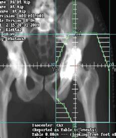 Delaying Radiation After Traumatic Acetabular Fractures