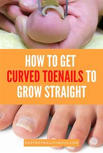 How To Get Toenails To Grow Straight  The Complete Guide