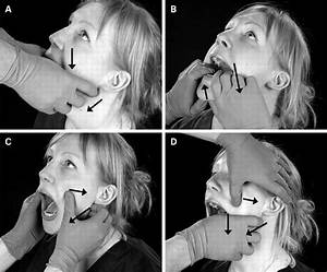 Bilateral Temporomandibular Joint Dislocation Following