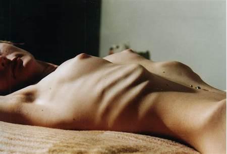 Nude Teen Anorexia
