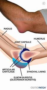 Elbow Bursitis Information