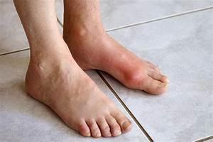 Quiz  Test Your Gout Smarts