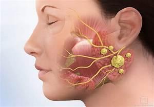 Symptoms Of Salivary Gland Stones