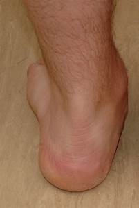 Acute Pes Planovalgus Deformity  Posterior View Of The