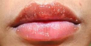 lip rash allergy - pictures, photos