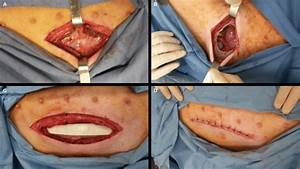 Different Steps Of Surgery  Notes   A  Incision Of Skin