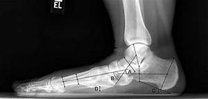 Radiograph Showing Standard Lateral Flatfoot Measurements