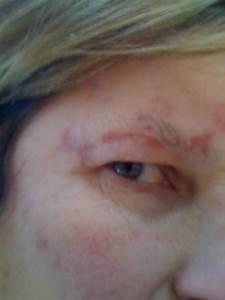 Life Has Its Ups & Downs: Shingles Scars