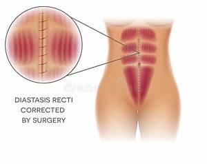Chirurgie Plastique Des Implants De Sein Illustration De Vecteur