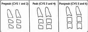 Diagrammatic Representation Of Cvm Stages  Cs1 And Cs2 Are