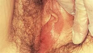 Bartholin Gland Cysts - Gynecology And Obstetrics