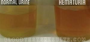 Normal Urine Test Results Chart Bilirubin Levels Chart Normal Low High Bilirubin Levels