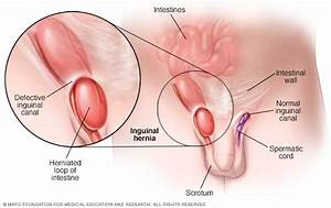 Inguinal Hernia - Symptoms And Causes