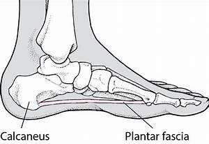 Quick Facts  Plantar Fasciitis