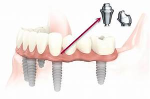 What Is The Full Mouth Dental Implants Success Rate