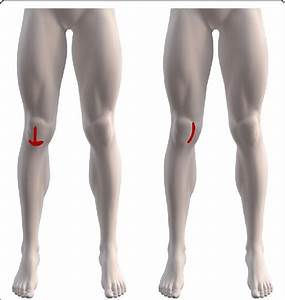 Knee Pain Drawings  Redrawn In Similarity To Knee Pain