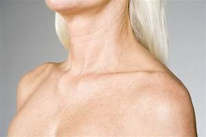Neck Washing  A Guide To The Neck Rejuvenation Treatment