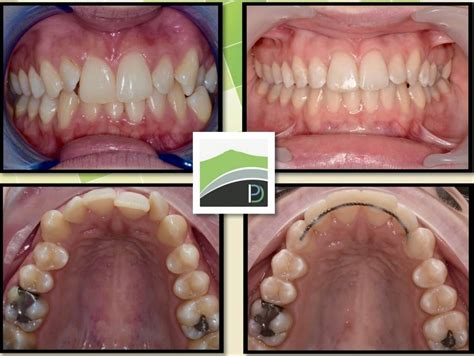 A better way to achieve a sterling smile without regular visits to the orthodontist and excessive. Quick Braces   Inverurie Dental Practice