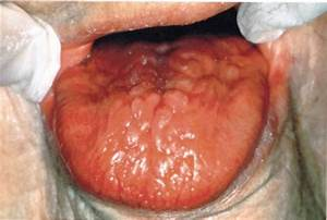 Smooth Erythematous Tongue  Oral Candidiasis