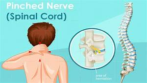 Pinched Nerve Pain Chicago