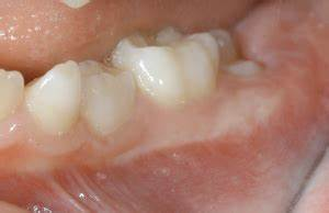 What are 6 Year Old Molars and how to help during their eruption? - Kiddies Dental Care  Child Dental Health Teeth